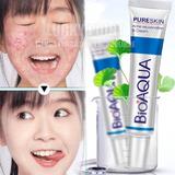 Crema Anti Acne  Y Secuelas Efecto Inmediato Micro-peeling